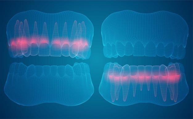 Человеческая челюсть. 3d-векторный макет. медицина и здоровье. боль в зубах.