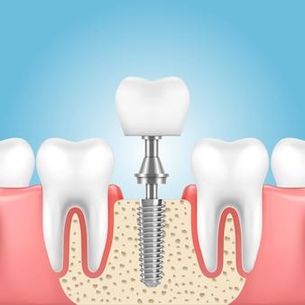 Человеческая челюсть со здоровыми зубами и протез с коронкой на имплант