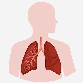 人間の肺の解剖図。病気の呼吸器がんのグラフィック。