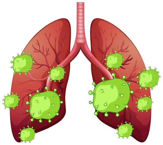 人間の肺と白い背景の上のコロナウイルス細胞