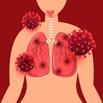 코로나 바이러스 감염 개념에 감염된 인간의 폐. covid 19 발발 및 유행성 의료 건강