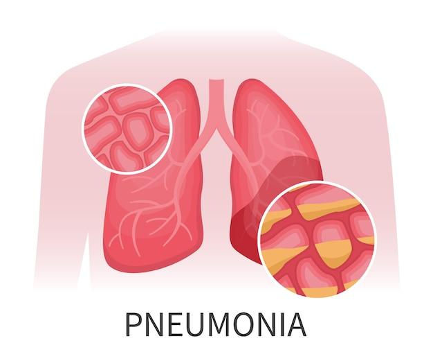 Легкие человека, пораженные пневмонией. органы, поврежденные вирусным заболеванием