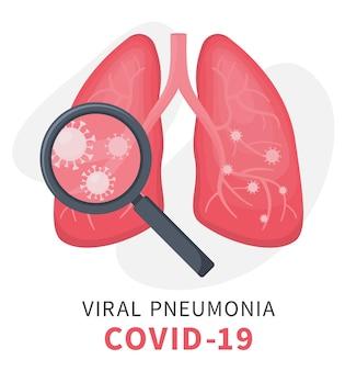 ウイルス性肺炎とcovidの下での人間の肺