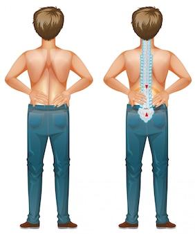 Maschio umano con mal di schiena