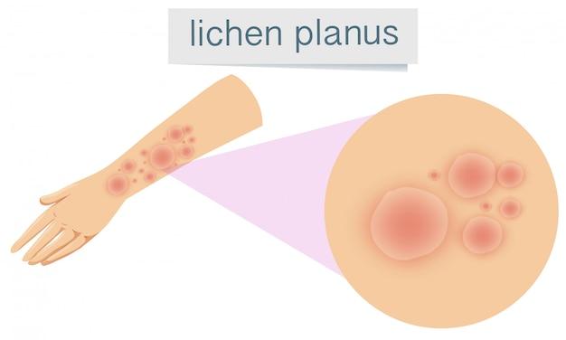 Pelle umana con lichen planus