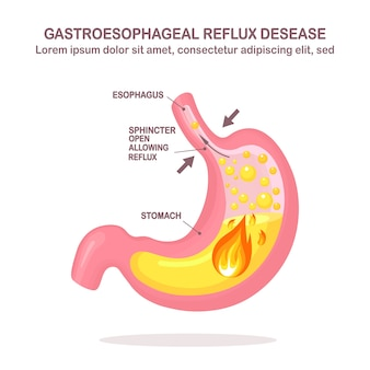 Human stomach. gastroesophageal reflux disease. gerd, heartburn, gastric infographic. acid moving up into the esophagus.