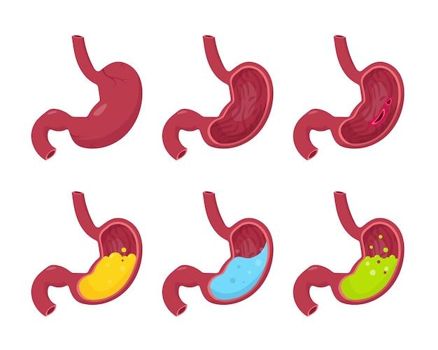Набор человеческих желудков, изолированные на белом фоне. человеческий желудок снаружи и поперечный разрез внутри - с водой, пищей, зеленой жидкостью, здоровым и патологическим.
