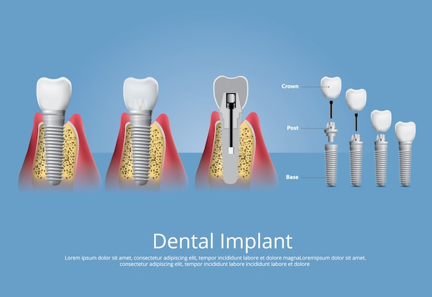 人間の歯と歯科インプラントベクトルイラスト