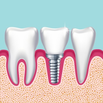 Human teeth and dental implant in jaw orthodontist medical