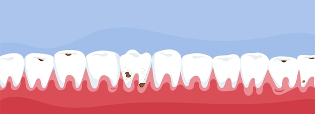 Human teeth in the mouth. dental care concept.