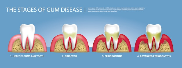 Human teeth stages of gum disease illustration