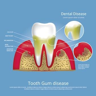 Human teeth stages of gum disease