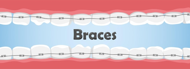 Human teeth with braces in the mouth. crooked teeth. dental care concept.
