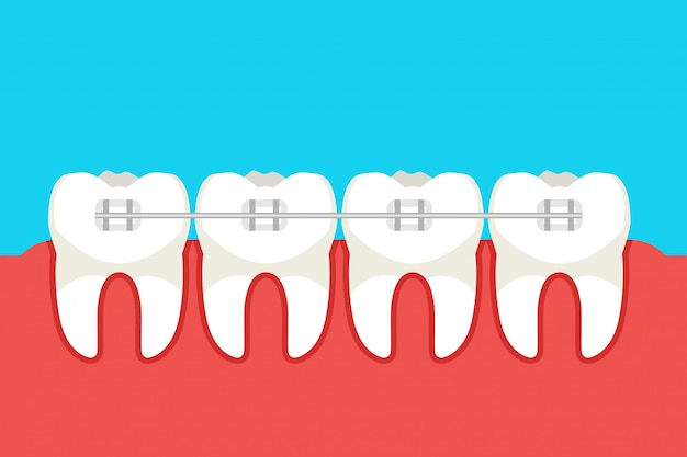 Human teeth with metal braces. vector illustration.