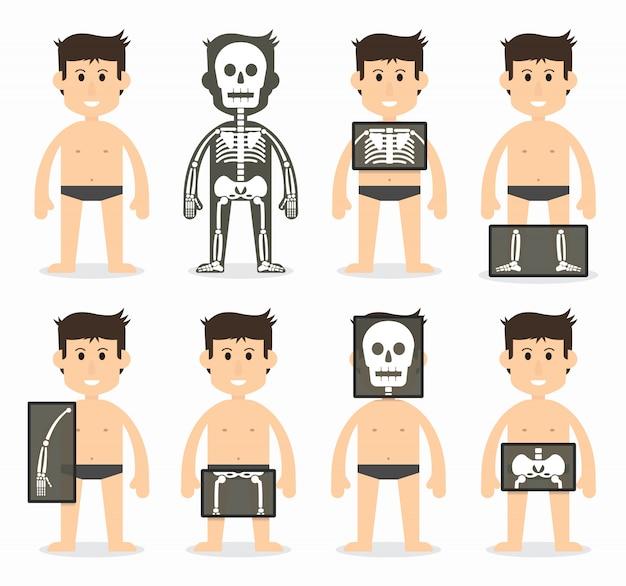 Human and total bone scan