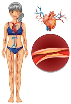 A the human vascular system