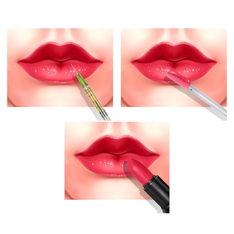 Hyaluronic acid filler injection or mesotherapy procedures. beautiful red female lips.