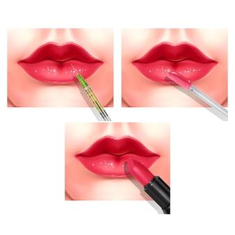 ヒアルロン酸フィラー注射またはメソセラピー手順。美しい赤い女性の唇。