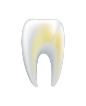 병든 인간의 치아입니다. 치과 의료 벡터 아이콘입니다. 변색된 치아 또는 치아 우식증에 대한 치과 치료가 필요합니다. 구강 치아 복원