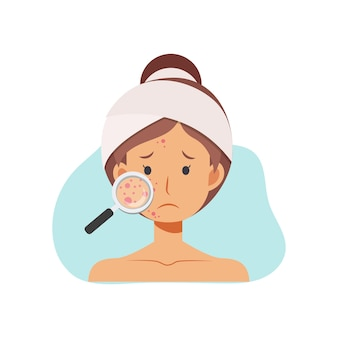 ニキビ肌の問題の概念についてのイラスト。虫眼鏡を持った女性が顔にニキビを探しています。