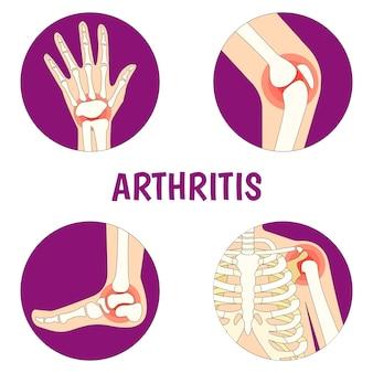 Illustration about arthritis