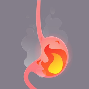 Illustration from acid reflux or heartburn.