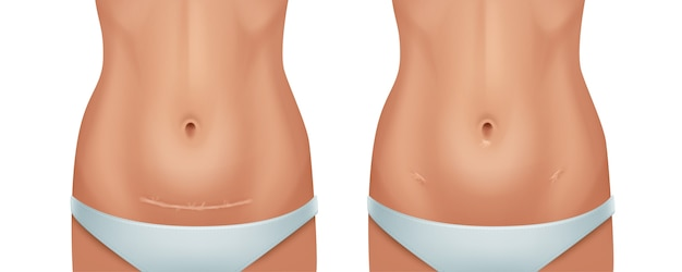 Illustration of healed scars human skin after cesarean operation