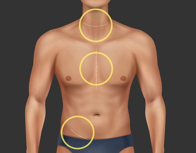 Illustration of man torso with healed scars at neck