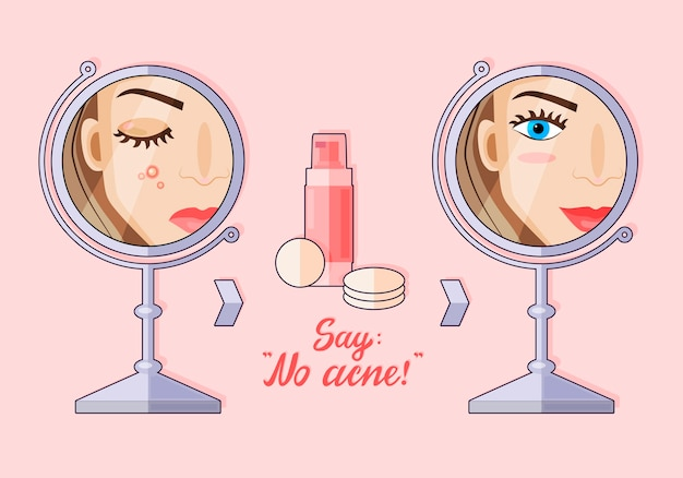 Illustration of a modern flat cartoon character. a girl who doesn't have skin problems. before and after. acne lotion. no acne.