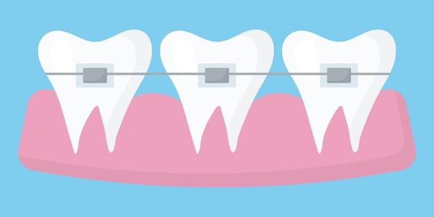 Иллюстрация зубов с брекетами концепция выравнивания зубов