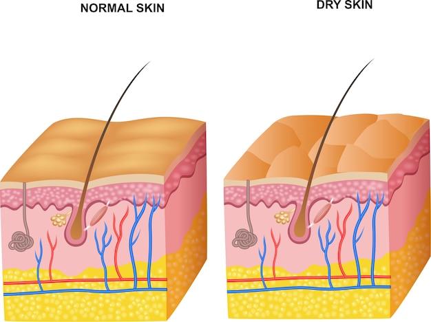 정상적인 피부와 건성 피부 층의 그림