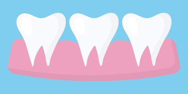Иллюстрация трех зубов в десне здоровые прямые зубы концепция здоровых зубов