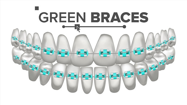 Illustration of teeth set with metal braces