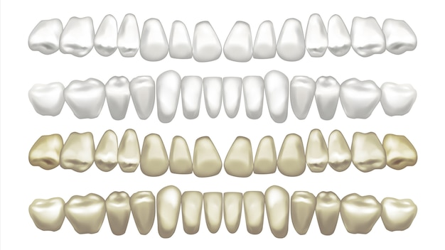 Illustration of teeth set