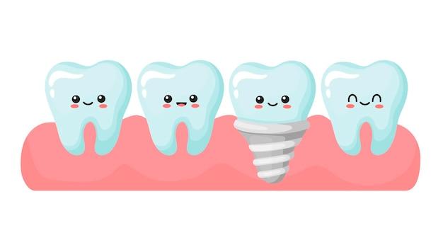 インプラントと健康な歯。かわいいカワイイ歯。漫画のスタイルでベクトルイラスト。