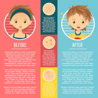 Infographics on problem skin with illustrations girl with pimples, pores, acne before and after.