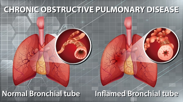 Informative illustration of chronic obstructive pulmonary disease