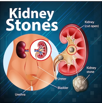 Informative illustration of kidney stones