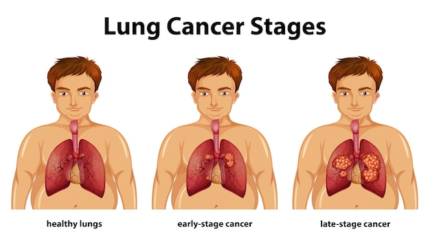 Informative illustration of lung cancer stages