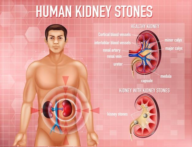 Информативная иллюстрация камней в почках