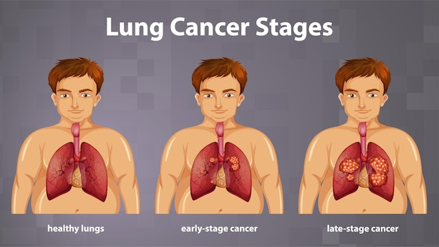 肺がんの病期の有益な図解