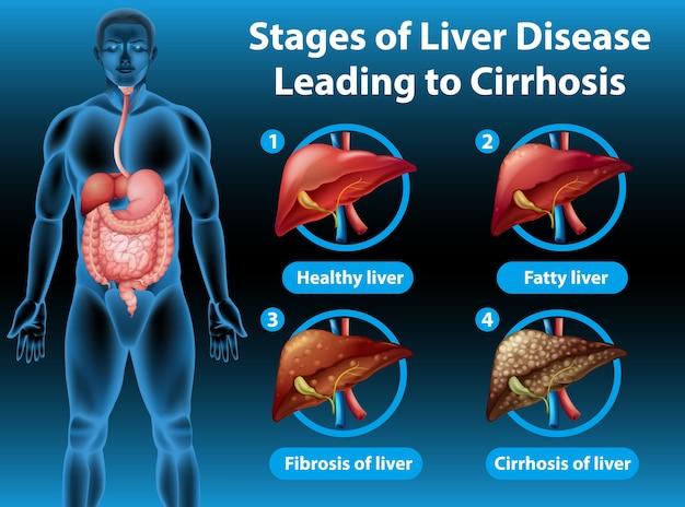 Информативная иллюстрация стадий заболевания печени, приводящего к циррозу