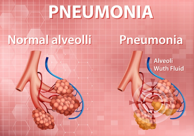 Informative illustration of pneumonia