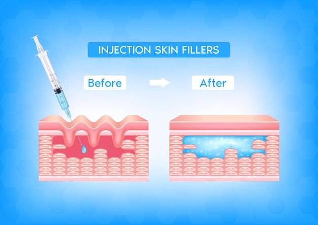 前後のしわのある真皮層のある顔の皮膚の下に注射フィラー注射