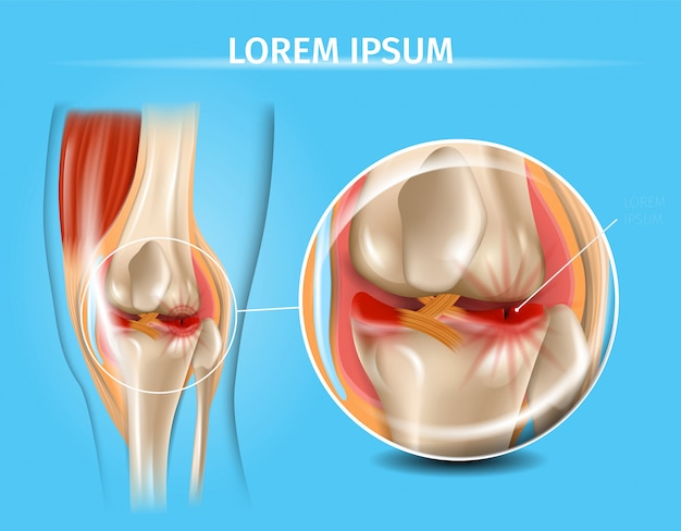 Injured knee joint with torn meniscus vector chart