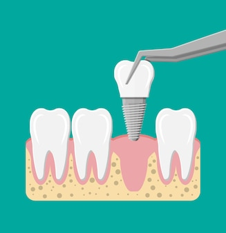 歯科用インプラントの取り付け