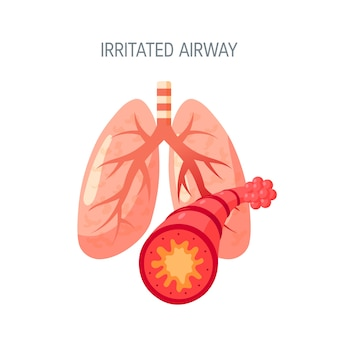 Irritated airway concept in flat style.