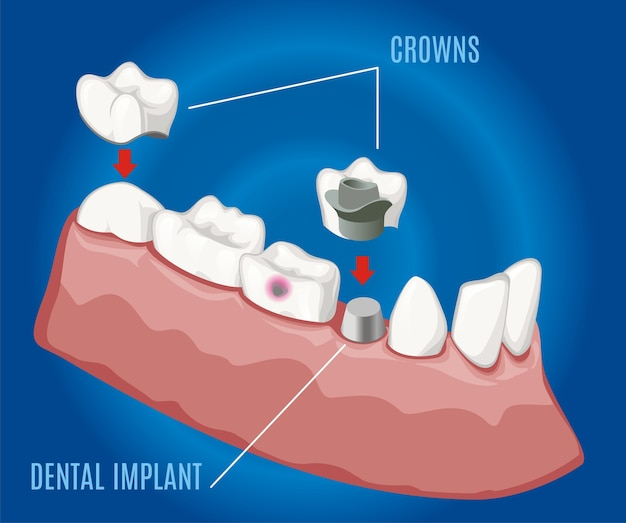 Isometric professional prosthetic stomatology template with dental implant and crowns on blue background isolated
