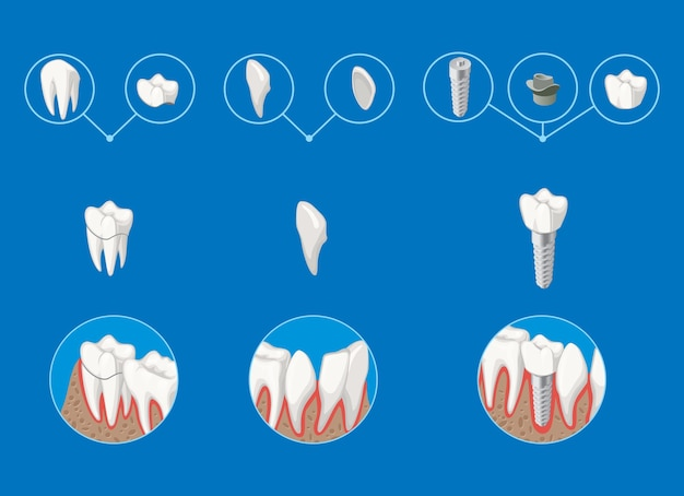 Isometric prosthetic dentistry infographic template with crown veneer