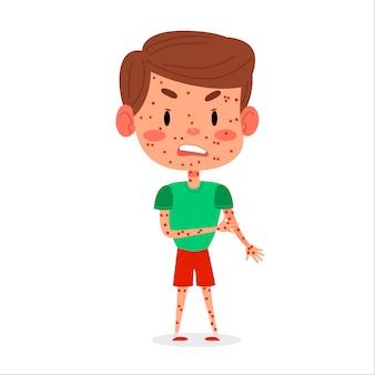 Kid boy has chickenpox or measles disease. red rash on children body  illustration
